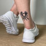 Vanessa lässt ihr Tattoo entfernen